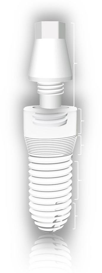 AWI Albus WITAR Implantat aus Hochleistungskeramik