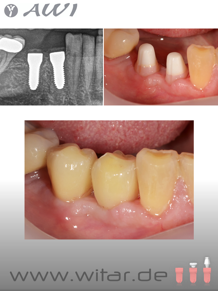 Fallbilder AWI Implantate